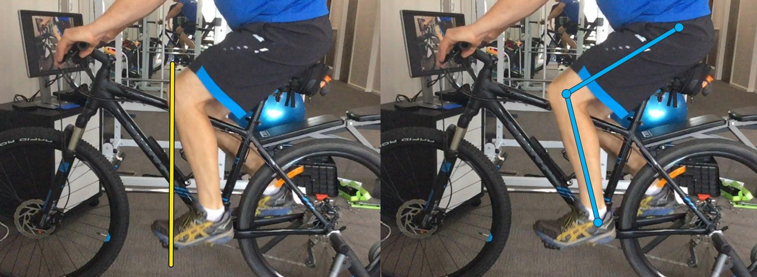 Bike Fit Assessment Sapphire Coast Physio